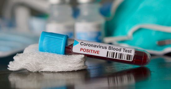 Coronavirus-Blood-Draw_Lab